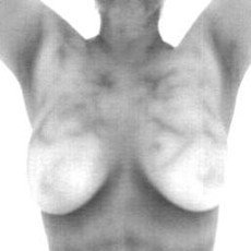 Thermography-For-Breast-Screening230x230