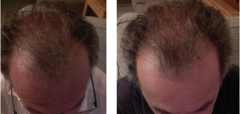 BioGroHair Before and After