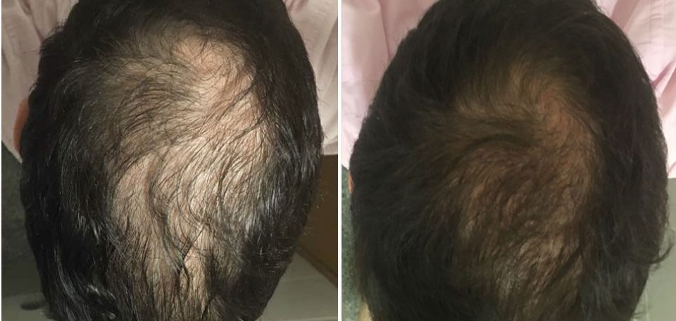 Biogrohair Before And After 5