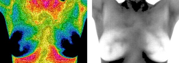 Can Thermal Imaging Detect Breast Cancer