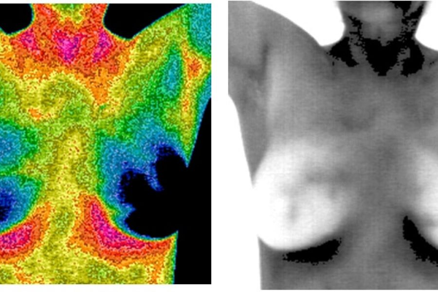 Can thermal imaging detect breast cancer?
