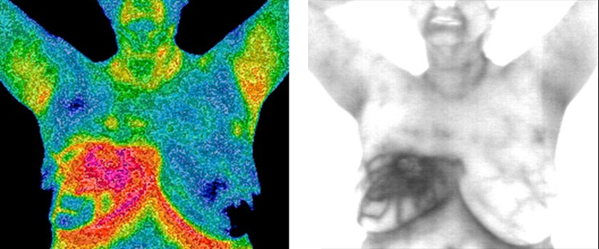 Breast Cancer Thermograms