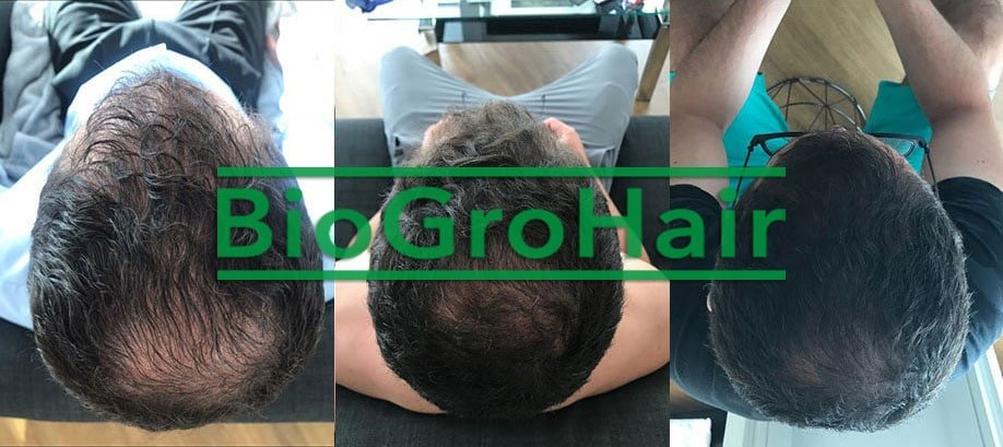 BioGroHair® Hair Loss Program