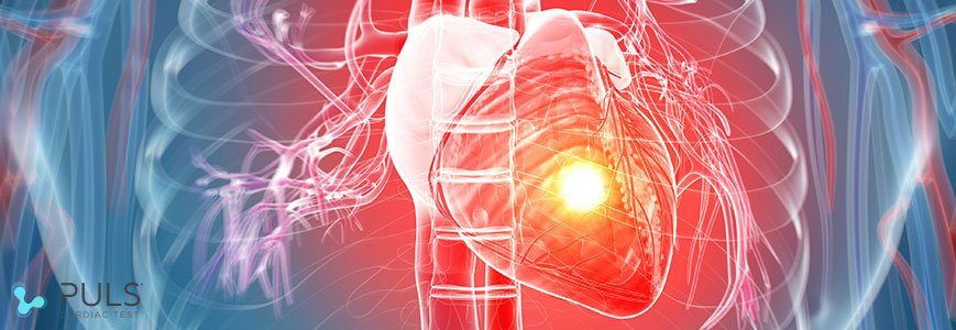 PULS Cardiovascular Risk Assessment