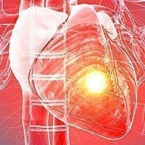 PULS Cardiac Testing